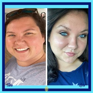 Before and After lbs lost